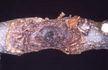 Nectria Canker